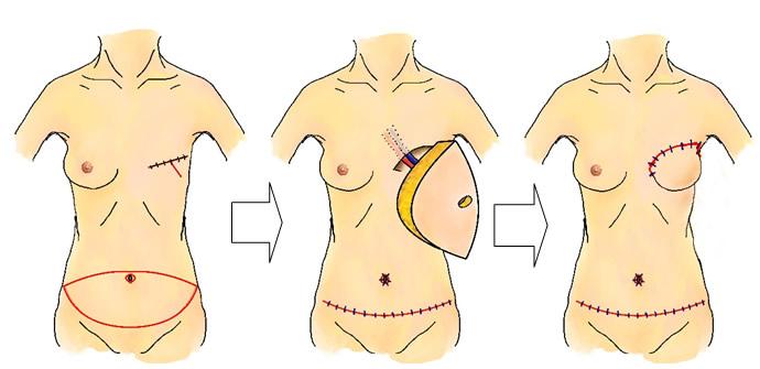 乳房再建について:大和市立病院